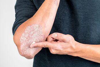 Bőr- és testápolás | Orvosi testápoló termékekHigiénia és testápolás -